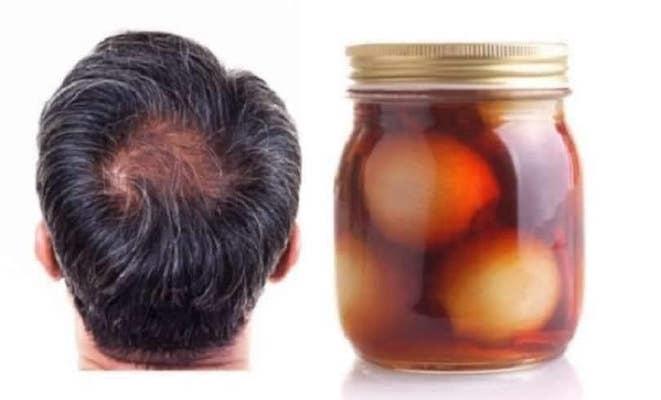 Remedio casero contra la caída del cabello